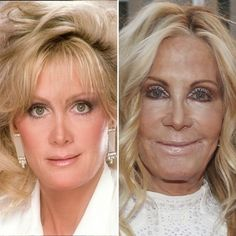 Celebrities With Plastic Surgery: Heidi Montag, Courteney Cox, and More - Care - Skin care , beauty ideas and skin care tips Bad Celebrity Plastic Surgery, Kylie Jenner Plastic Surgery, Bad Plastic Surgeries, Face Plastic Surgery, Courtney Cox Plastic Surgery, Neck Lift, Celebrities Before And After, Skin Resurfacing, Liposuction