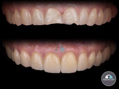 Look at this amazing smile makeover! We can easily notice the importance of the width/length of maxillary anterior permanent teeth in anterior esthetic rehabilitation. Visit Advanced Smiles Dentistry to get a cosmetic evaluation and transform your smile for very affordable prices! Tijuana has evolved in to being one of the top cities in the world preferred by many patients to do medical tourism. Our patient coordinator leaders can help you schedule an appointment in the best dental clinic… Smile Makeover, Dentistry, Your Smile, Schedule, Clinic, Dental, Teeth, Cities, Tourism
