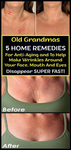 Old Grandmas 5 Home Remedies For Anti-Aging and To Help Make Wrinkles Around Your Face, Mouth And Eyes Disappear Super Fast – Care – Skin care , beauty ideas and skin care tips Anti Aging Skin Care, Natural Skin Care, Natural Beauty, Anti Aging Tips, Natural Face, Natural Oils, Beauty Care, Beauty Skin, Diy Beauty