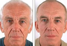 Guys And Facelift Exercise Facial Gymnastics Workouts For Men
