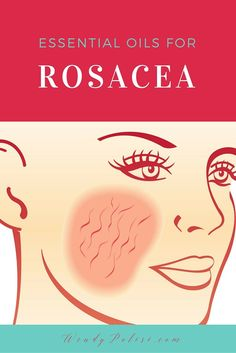 Essential Oils can be very helpful when dealing with rosacea. Learn about the best essential oils for rosacea. Essential Oils can be very helpful when dealing with rosacea. Learn about the best essential oils for rosacea. Essential Oils For Rosacea, Cooking With Essential Oils, Best Essential Oils, Essential Oil Blends, Natural Remedies For Rosacea, Rosacea Remedies, Easential Oils, Doterra Essential Oils, Young Living Oils