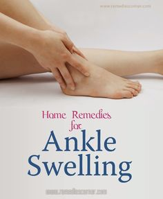 Home Remedies for Ankle Swelling | Remedies Corner