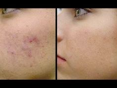 How to get rid of acne marks? Get rid of acne marks fast. How to cure acne marks naturally? Remedies for acne marks. Red Bumps On Face, Spots On Face, Pole Dancing, Red Acne Marks, Pimple Marks, Tighter Skin, How To Get Rid Of Pimples, Crimped Hair, Pole Dance