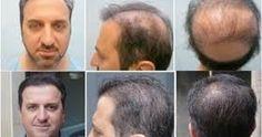Perte de cheveux   Le cuir chevelu adulte contient environ 100 000 follicules pileux. Chaque jour, le cuir chevelu perd environ 100 cheveu...
