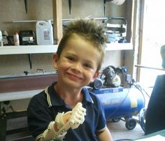 This 3D printed robohand just made this kid with amniotic band syndrome smile. So cool! Preston's dr. never thought this would be possible, but here we are 11 years later and it's a reality! :)