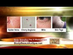 Skin Tag Removal at Body Beautiful Spa in Phoenix, AZ  Body Beautiful Spa recently demonstrated removing a skin tag, removing a spider vein near the nose, and removing a sebaceous hyperplasia on the forehead on Sonoran Living. A little numbing cream was applied so Frank, our willing subject, would feel no pain. Not all skin tags require numbing cream. Most are virtually painless to remove.   602-522-9222 www.bodybeautifulspa.net