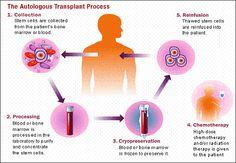 Autologous Stem Cell Transplant For Treating Lymphomas