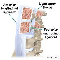Ligamentum flavum - one of my favorite medical phrases Anatomy Bones, Human Spine, Medical Anatomy, Anatomy And Physiology, Chiropractic, Nursing, Lab, Brain, Anatomy