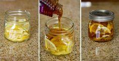 Remedio para aliviar el dolor de garganta