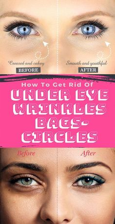 Looking For Wrinkle Eye Care Advice, Read This Article! - Eye Care Tips Under Eye Creases, Under Eye Wrinkles, Skin Care Regimen, Skin Care Tips, Get Rid Of Pores, Routine, Dark Circles Under Eyes, Under Eye Bags, Les Rides