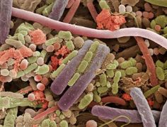 bacteria on the surface of the human tongue as seen under a scanning electron microscope.