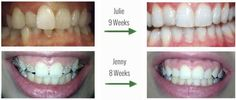 Quick Straight Teeth can achieve straighter teeth in a matter of weeks. Bury Dental Centre is the only accredited provider in the North West. 6 Month Braces, Snap On Smile, Braces Cost, Invisible Braces, Clear Aligners, Teeth Straightening, Porcelain Veneers, Gum Health, Dental Center