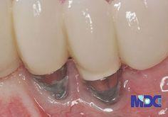 مانند هر عمل جراحی، عمل جراحی کاشت دندان خطراتی را میتواند برای سلامتی به همراه داشته باشد. اگرچه این مشکلات نادر است و در صورت بروز معمولا جزئی بوده و جدی نیستند و بهراحتی درمان میشوند. این خطرات شامل موارد زیر است: Dental Implants, Glass Of Milk, Nails, Beauty, Food, Finger Nails, Ongles, Essen, Meals