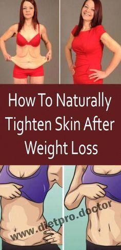 Tips on how to Tighten Stomach Skin Naturally #HowToTightenStomachSkin #SkinLumpOnLeg #MyCatHasAReallySaggyStomach