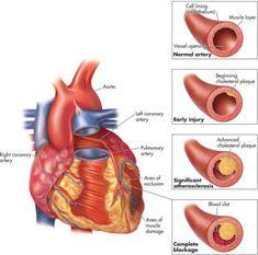 High Blood Pressure Natural Pack