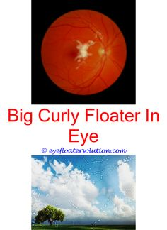 Rainbow Floaters In Eyes How To Cure Eye Floaters And