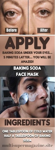 Beauty Remedies Apply Baking Soda Under Your Eyes… 5 Minutes Latter… You Will Be Amazed! - Baking soda is a powerful remedy for the skin and with good reason. We all know how great it can be for the health, so why not the skin as well? Natural Health Tips, Health And Beauty Tips, Natural Skin, Natural Beauty, Baking Soda Under Eyes, Baking Soda Face, Baking Soda Dark Circles, Belleza Diy, Tips Belleza