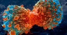 Τέλος οι χημειοθεραπείες: Αυτή είναι η νέα μέθοδος καταπολέμησης του καρκίνου!