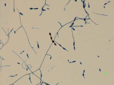 Alternaria has beak shaped conidia that line up in a train, making it very identifiable.  Each individual conidia is muriform, meaning that its crosswalls, or septations, divide the conidia into irregular septations