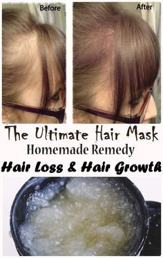 This mask is made of the best three ingredients that are super healthy for your hair.Continue reading... Home Remedies For Hair, Hair Loss Remedies, Hair Loss Treatment, Hair Repair, Tips Belleza, Belleza Natural, Health And Beauty Tips, Hair Health, Grow Hair