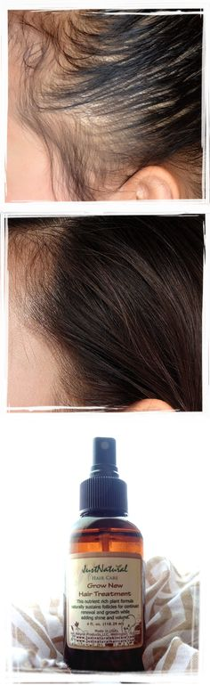 I never thought a natural product was the answer to my hair loss. My doctor told me, I would most likely never be able to grow hair again. He was wrong. My hair is growing like grass!! It's truly amazing. I am in my 50's and I never took a second to try natural products until now. I was really missing out. I am using the grow new hair treatment and shampoo. I will continue to use these amazing products!