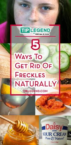 How To Get rid of freckles naturally. I wonder if this is true? Face Care, Body Care, Home Remedies, Natural Remedies, Getting Rid Of Freckles, Anti Aging, Daisy Sour Cream, Brown Spots On Face, Dark Spots