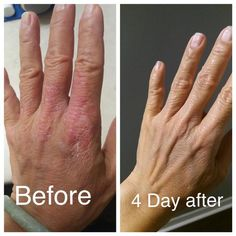 eczema and psoriasis cream Each gram of cream able to cover about 1 squard foot affected area. Eczema On Hands, Psoriasis On Hands, Psoriasis Cream, Eczema Psoriasis, Severe Eczema, Manicure Nail Designs, How To Treat Eczema, Psoriasis Remedies