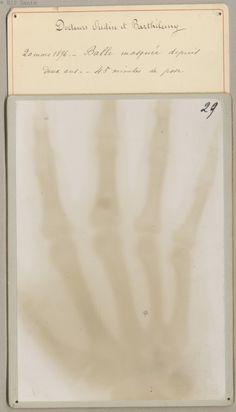 20 mars 1896. - Balle masquée depuis deux ans. - 45 minutes de pose. Barthélemy, Toussaint . - [Collection de 65 photoélectrographies, premières radiographies obtenues en France]. Paris, 1896. BIU Santé -