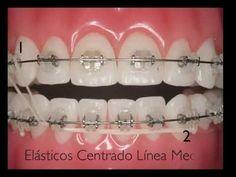 ORTODONCIA: Uso de los elásticos en Ortodoncia Fija | Odonto-Tv