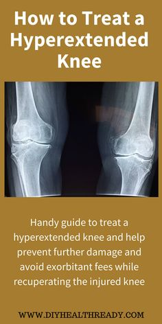 Handy guide on how to treat a hyperextended knee to help prevent further damage to your knee and avoid exorbitant fees while recuperating the injured knee. Hyperextended Knee, Pa School, Hypermobility, Health Cleanse, After Surgery, Knee Brace, Knee Injury, Injury Prevention, Braces