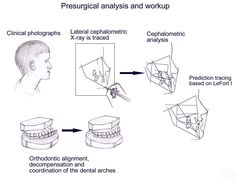 Orthognathic Surgery: Background, History of the Procedure, Problem