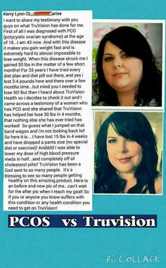 Her story touches home for me. PCOS makes it so hard to lose weight, but TruV is helping to make it happen for me. stephkelley72.truvisionhealth.com Health And Nutrition, Health And Wellness, Health Fitness, Make Good Choices, Weight Loss Inspiration, Pcos, Healthy Life, Healthy Eating, Chronic Pain