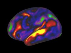 Just like regular maps, brain maps are useful points of reference. Scientists use them to agree on what they're studying in the first place.