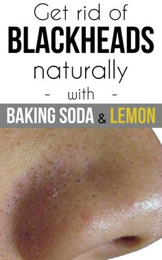 Get rid of blackheads naturally with baking soda and lemon - TheBeautyMania.net