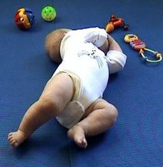 Hyper mobility and low muscles tone in infants