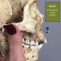 How do forensic artists know how to sculpt a nose when the skull is damaged?