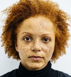 Foto's van roodharigen met Afrikaanse en Caribische wortels   VICE   Netherlands