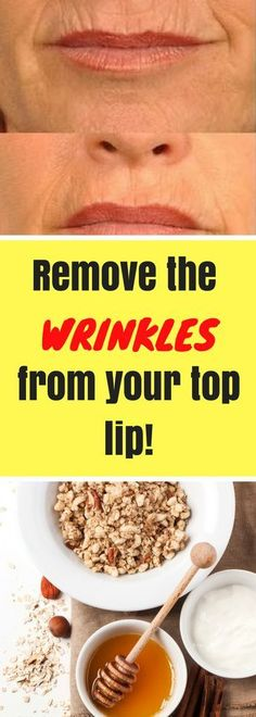 The wrinkles above the lip are very common and they can appear as a result of ageing, smoking, genet Lip Wrinkles, Prevent Wrinkles, Home Remedies For Acne, Acne Remedies, Natural Remedies, Anti Aging Facial, Best Anti Aging, Facial Diy, Lips