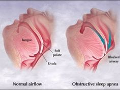 Sleep Apnea and Dry Eye Syndrome
