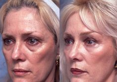 With These Face Training Remedies, Say No To Cosmetic Surgery And Yes To A Non-Invasive Facelift