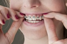 How to Make Fake Braces for Halloween (with Pictures) | eHow ~might need this later for my Mabel Pines Costume