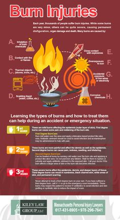 Burns Injuries and How to Treat Them - Infographic. During an accident or emergency, you should know about the and degree burns and how to treat them. Learn how with this infographic, additionally you can use Burns and Wounds Ointment, which Disaster Preparedness, Survival Prepping, Survival Skills, Emergency First Aid, Emergency Preparation, Types Of Burns, First Aid Cpr, Burn First Aid, Burn Injury