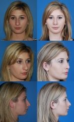 Nose surgery or rhinoplasty at http://www.drkevinbrenner.com/procedures/facial/nose-surgery-rhinoplasty is performed by a highly skilled Beverly Hills plastic surgeon.  Rhinoplasty also known as nose surgery performed by a skilled plastic surgeon can rejuvenate the way you look.  Visit http://www.drkevinbrenner.com/procedures/facial/nose-surgery-rhinoplasty for more information on Rhinoplasty or nose surgery.