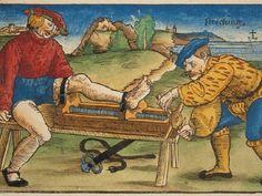 Feldtbüch der Wundartzney (1517) by Hans von Gersdorff  This is an early device for repair of a fractured leg