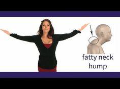 Forward Head Posture Correction! - Dowager's Hump Correction Exercises! - YouTube