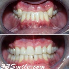 Check out this completed Invisalign case! Dr. Moore was recognized nationally by other doctors for this case as well as recognized by Invisalign. This patient had an extreme underbite and was told surgery was the only option. Invisalign can accomplish so much in the right hands. We are a Platinum Provider and offer free consultations. If you want to straighten your teeth wed love to hear from you! Call us or schedule yourself online at 33smile.com. #drjamsmiles #33Smile . . All photos and vide Dental Cosmetics, Dental Procedures, Cosmetic Dentistry, Beautiful Smile, Doctors, Surgery, Schedule, Teeth, Wellness