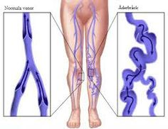 varices termen medical