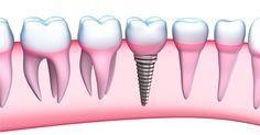 Advantages of Dental Implant over Dentures