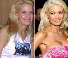 Holly Madison went under a chin alteration, nose job, cheek implants, and lip filler to attain a more classic look for boyfriend Hugh Hefner Bad Plastic Surgeries, Plastic Surgery Photos, Celebrity Plastic Surgery, Cheek Implants, Plastic Surgery Before After, Celebs Without Makeup, Holly Madison, Celebrities Before And After, Power Of Makeup
