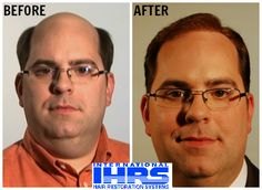 Owner of IHRS, Dave Barker, understands what it's like to lose your hair, and that's why IHRS is here to help. Visit Hair4Me.com to book a FREE consultation today! #hairloss #hairrestoration #IHRS #internationalhairrestorationsystems